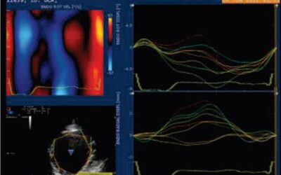 Cardiomiopatia dilatativa nel terranova